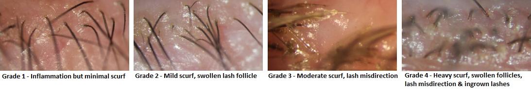 Anterior Blepharitis Grading