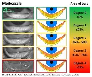 Meiboscale